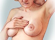 BreastExam-Thumb