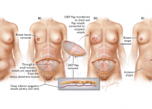 DIEP Flap Breast Reconstruction (Deep Inferior Epigastric Artery Perforator)