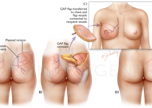 Breast Reconstruction: Gluteal Artery Perforator (GAP) Flap Procedure