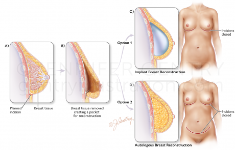 Nipple-Sparing Breast Reconstruction, both Implant and Autologous