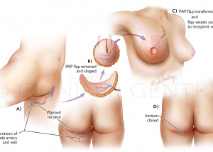 PAP Flap Breast Reconstruction