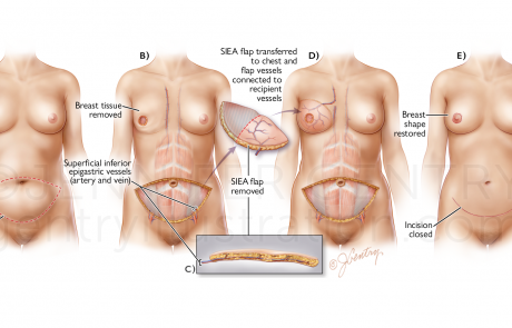 Breast Reconstruction: Superficial Inferior Epigastric Artery (SIEA) Flap Procedure