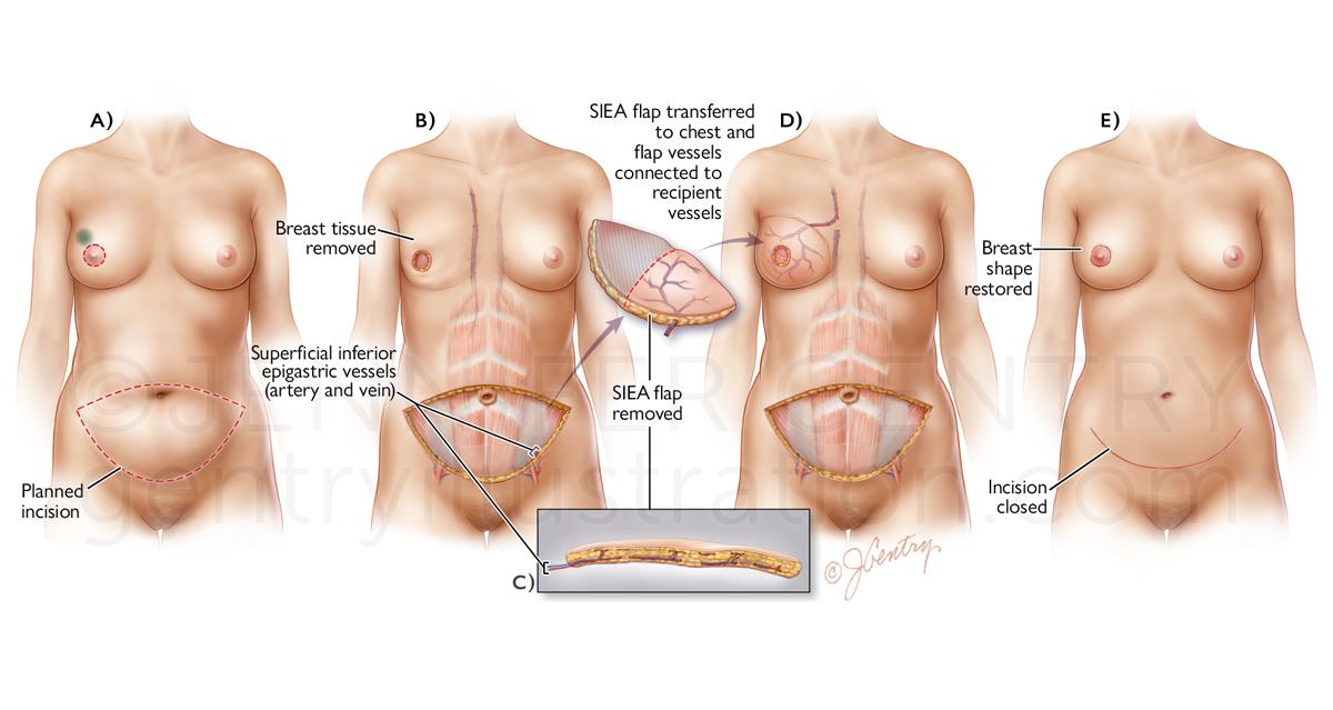 Breast Reconstruction: Superficial Inferior Epigastric Artery (SIEA) Flap Procedure