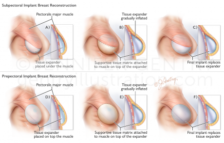 Breast Reconstruction: Prepectoral and Subpectoral Implant Procedure using Tissue Expander