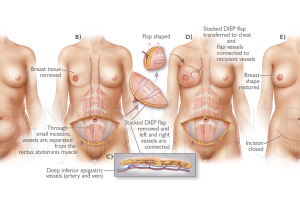 Breast Reconstruction: Stacked Deep Inferior Epigastric Artery Perforator (Stacked DIEP) Flap Procedure